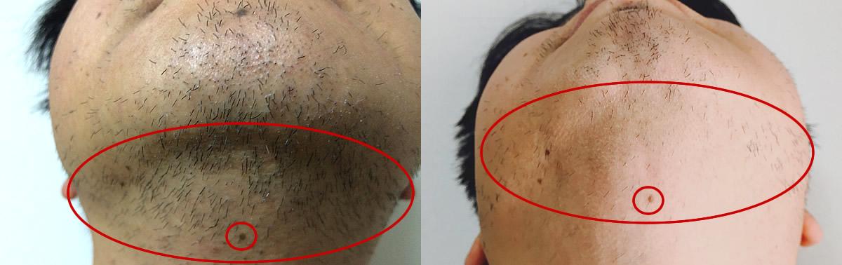 光脱毛によるヒゲ脱毛のビフォーアフター