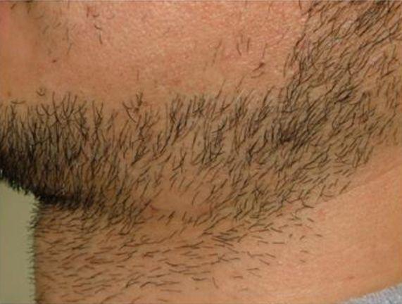 首の脱毛1