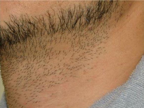 首の脱毛2