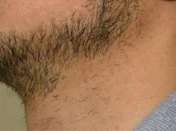 首の脱毛3