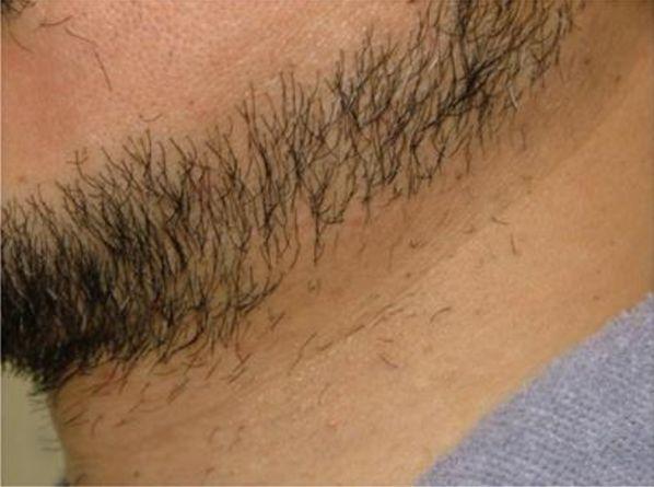 首の脱毛4