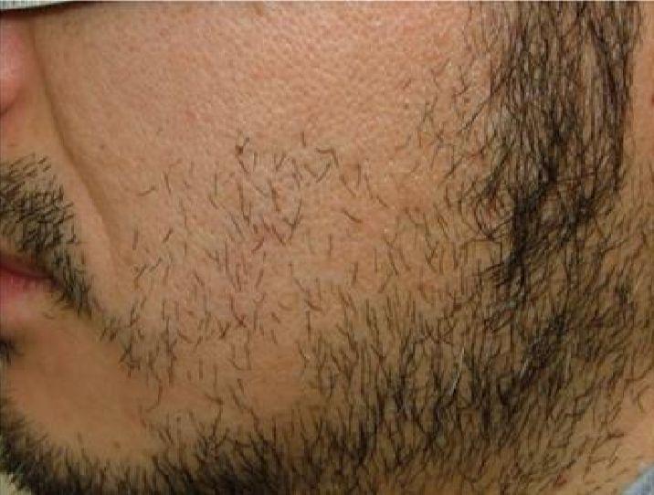 両頬の脱毛1