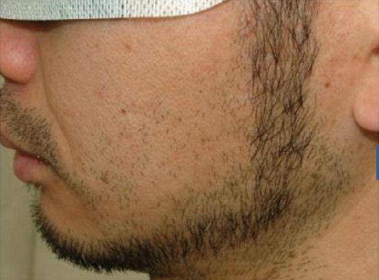 両頬の脱毛2