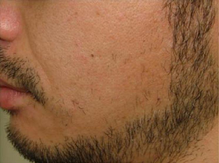 両頬の脱毛3