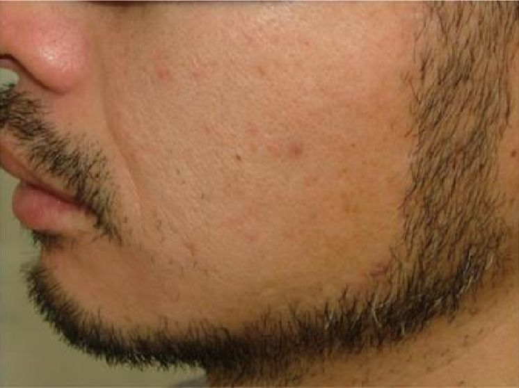 両頬の脱毛5