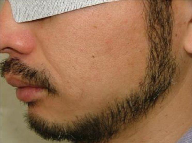 両頬の脱毛6