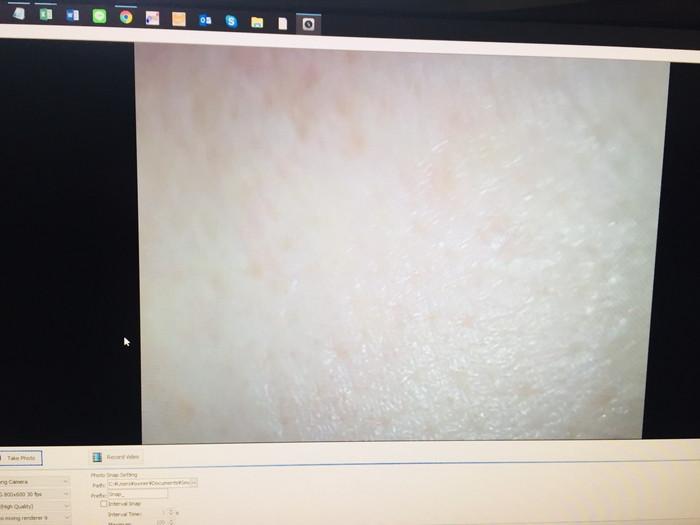 RFボーテの効果 使った後の肌の状態をチェック